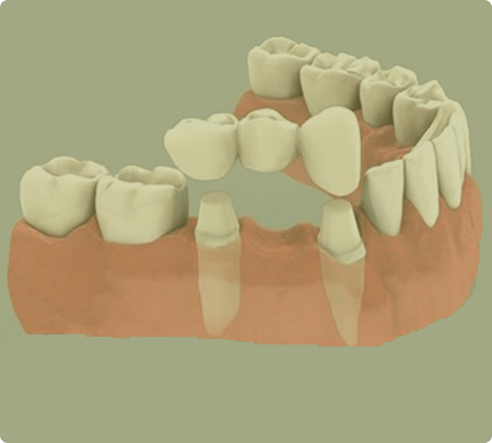 Dental Bridges   Main Street Dental Airdrie