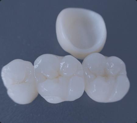 Dental Crowns   Main Street Dental Airdrie