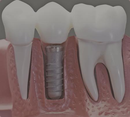 Dental Implants | Main Street Dental Airdrie