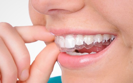 Invisalign | Main Street Dental Airdrie